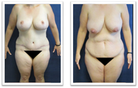Partington_Seattle_Abdominoplasty-2-AP-680x319 Tummy Tuck Woodinville, WA