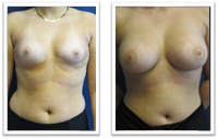Breast-Implants-Cosmetic-Surgery-Federal-Way Breast Implants Issaquah