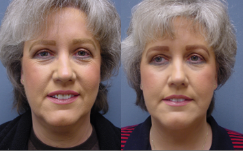 Patient-C-View-One-Face-Lift Facelift Mercer Island, WA
