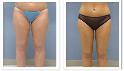 Liposuction-9-AP-680x466 Liposuction Newcastle, WA