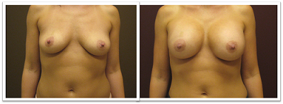 Partington_Seattle_BreastAug-20-AP-680x319 Breast Augmentation Lake Forest Park