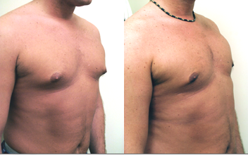 ALPHAEONCredit300 Male Breast <br> Reduction
