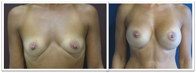 Partington_Seattle_BreastAug-20-AP-680x319 Breast Augmentation Kirkland