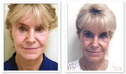 Partington_Seattle_Facelift-Neck-Eyelid-Lift-1-AP-680x319 Facelift Renton, WA