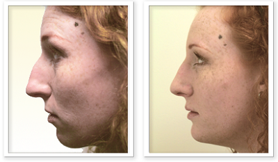 ALPHAEONCredit300 Rhinoplasty
