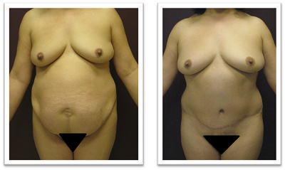 Partington_Seattle_Abdominoplasty-2-AP-680x319 Tummy Tuck Kirkland, WA