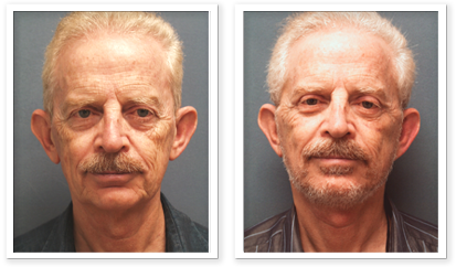Partington_Seattle_Blepharoplasty-5-AP-680x319 Facelift Seattle, WA