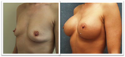breast-impants-surgery-redmond Breast Implants Bothell