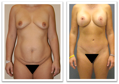 Partington_Seattle_Abdominoplasty-2-AP-680x319 Tummy Tuck Newcastle, WA