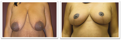 ALPHAEONCredit300 Breast Reduction