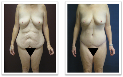Partington_Seattle_Abdominoplasty-2-AP-680x319 Tummy Tuck Federal Way, WA