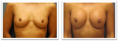 Partington_Seattle_BreastAug-20-AP-680x319 Breast Augmentation Magnolia