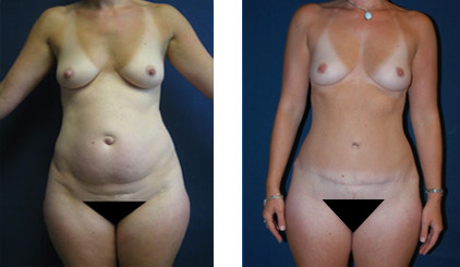 Partington_Seattle_Abdominoplasty-2-AP-680x319 Tummy Tuck Issaquah, WA