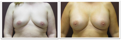 Partington_Seattle_BreastAug-20-AP-680x319 Breast Augmentation Capitol Hill