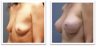 Breast-Augmentation-Bothell-Area Breast Implants Mercer Island