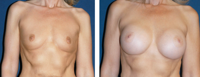 Breast-Enhancement-Bellevue-Area Breast Implants Kent WA