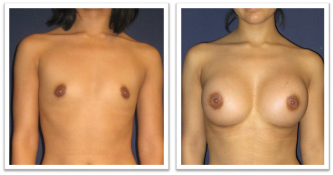 Partington_Seattle_BreastAug-20-AP-680x319 Breast Augmentation Mill Creek, WA