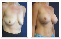 breast-implants-redmond Breast Implants Redmond