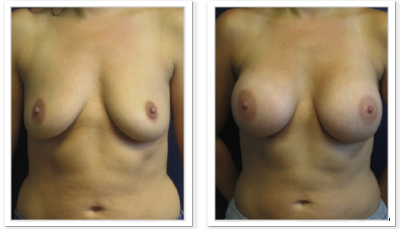 Partington_Seattle_BreastAug-20-AP-680x319 Breast Augmentation Newcastle, WA