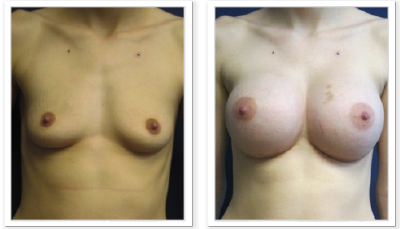 Partington_Seattle_Breast-Augmentation-22-AP-680x319 Breast Augmentation Ballard