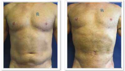 Liposuction-9-AP-680x466 Liposuction Clyde Hill, WA
