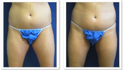 ALPHAEONCredit300 Liposuction