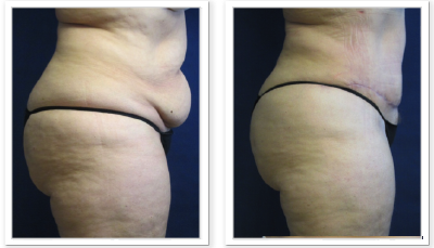 Liposuction-9-AP-680x466 Liposuction Kent, WA