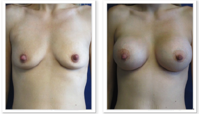 Partington_Seattle_BreastAug-20-AP-680x319 Breast Augmentation Seattle, WA