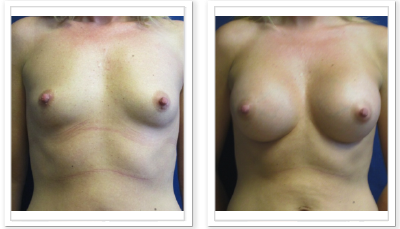 Partington_Seattle_BreastAug-20-AP-680x319 Breast Augmentation Mountlake Terrace, WA
