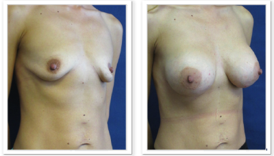 Partington_Seattle_BreastAug-20-AP-680x319 Breast Augmentation Medina, WA