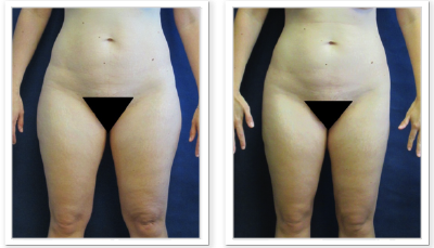 Liposuction-9-AP-680x466 Liposuction Renton, WA
