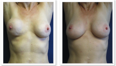 Partington_Seattle_BreastAug-20-AP-680x319 Breast Implants Auburn, WA