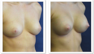 Partington_Seattle_BreastAug-19-AP-680x319 Breast Augmentation Sammamish, WA