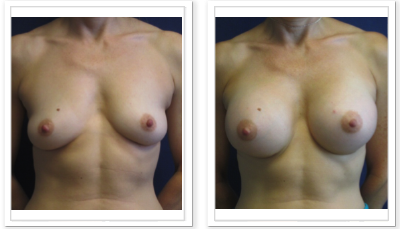 ALPHAEONCredit300 Breast Augmentation