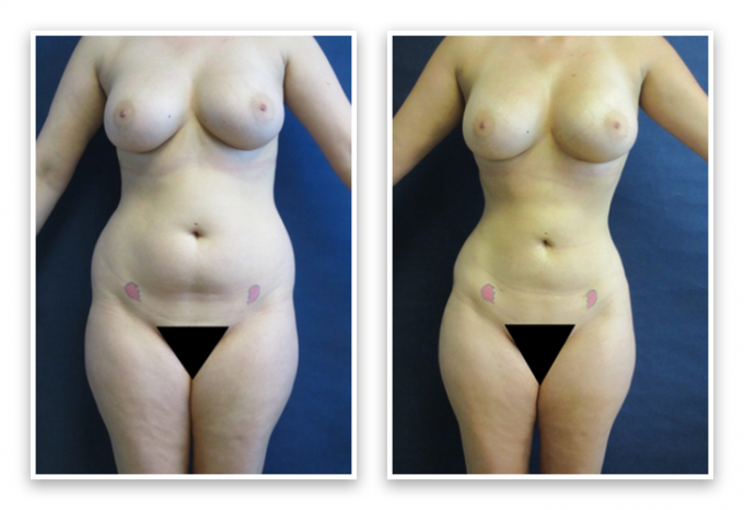 Liposuction-9-AP-680x466 Liposuction Bothell, WA