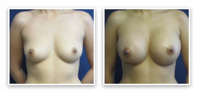 Partington_Seattle_BreastAug-20-AP-680x319 Breast Implants