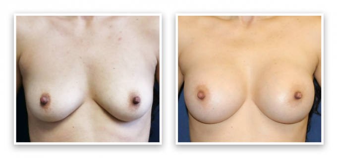 Partington_Seattle_BreastAug-20-AP-680x319 Breast Augmentation Shoreline, WA