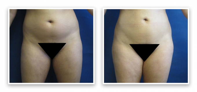 Liposuction-9-AP-680x466 Liposuction Federal Way, WA