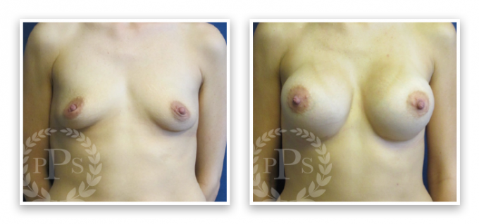 Breast-Augmentation-Bellevue-Area Breast Implants Federal Way