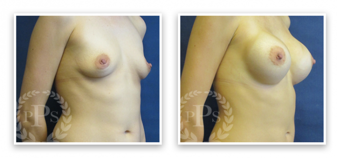 Partington_Seattle_BreastAug-20-AP-680x319 Breast Augmentation Woodinville, WA