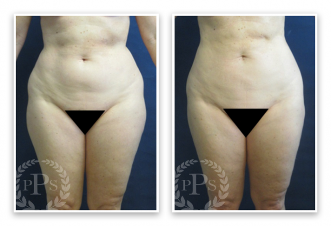 Liposuction-9-AP-680x466 Liposuction Bellevue, WA