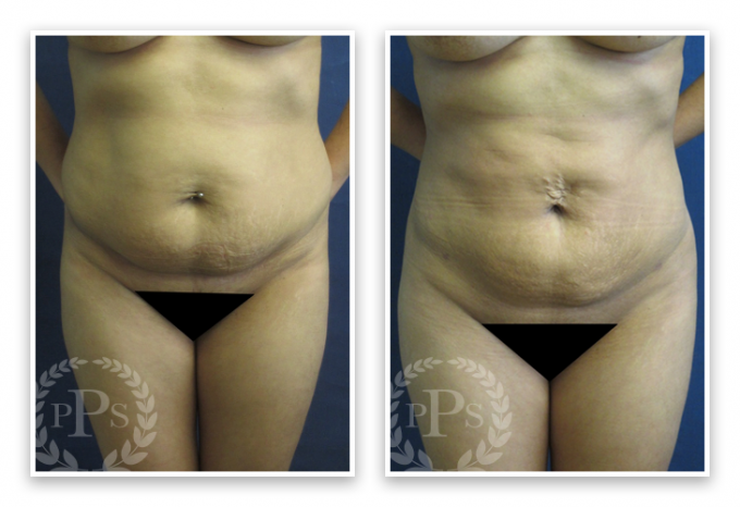 Liposuction-9-AP-680x466 Liposuction Capitol Hill, WA