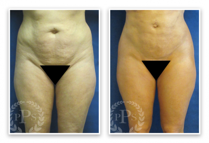 Liposuction-9-AP-680x466 Liposuction Kirkland, WA