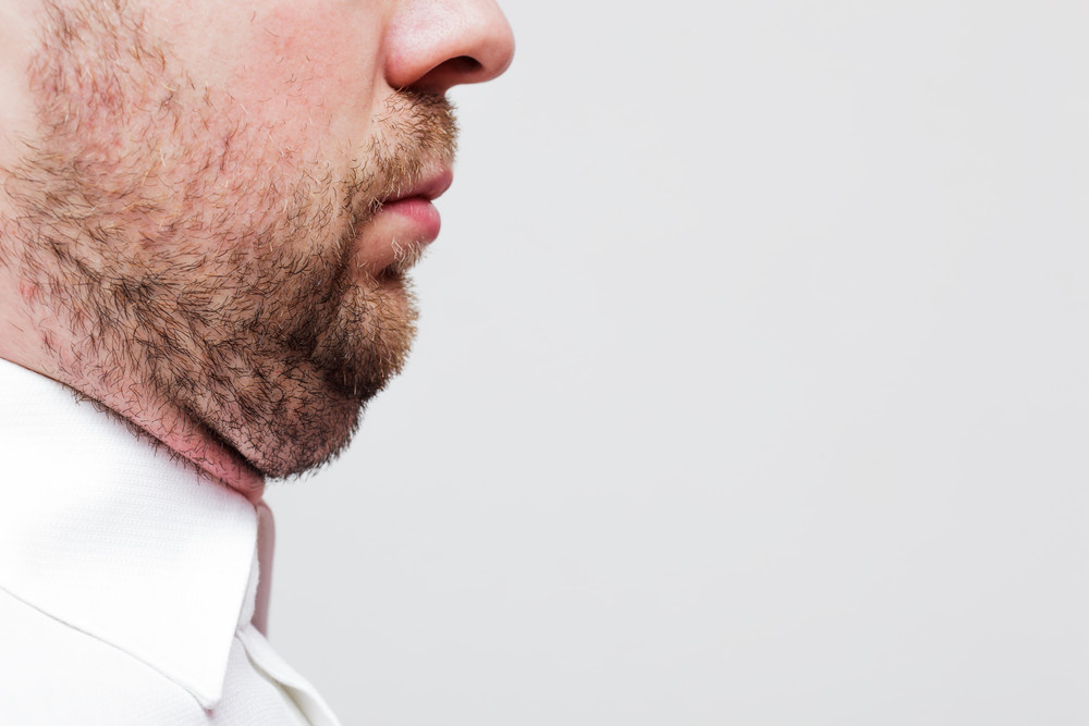 Say Goodbye to Double Chin with Kybella®!