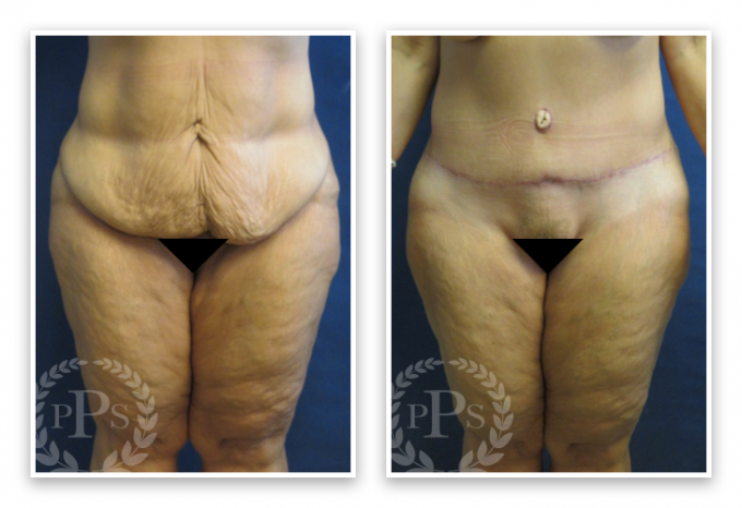 Partington_Seattle_Abdominoplasty-2-AP-680x319 Tummy Tuck Kent, WA
