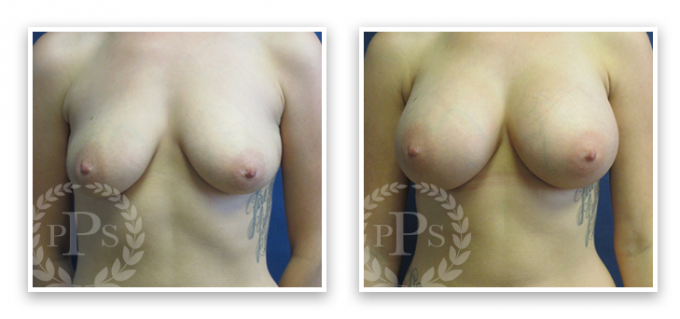 Partington_Seattle_BreastAug-20-AP-680x319 Breast Augmentation Sammamish, WA