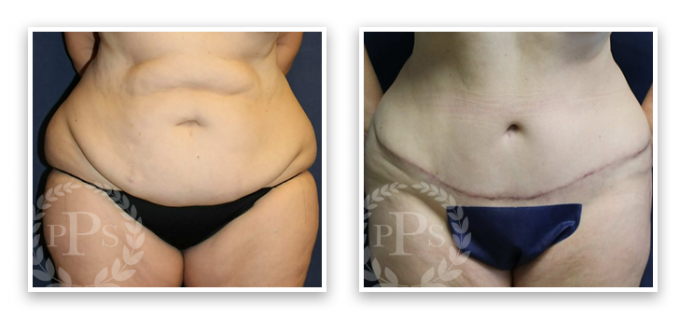 Partington_Seattle_Abdominoplasty-2-AP-680x319 Tummy Tuck Renton, WA