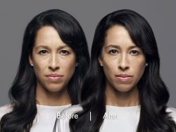 CLAUDINE-MIDDLE-NEW-250x187 RHA Collection Injectables