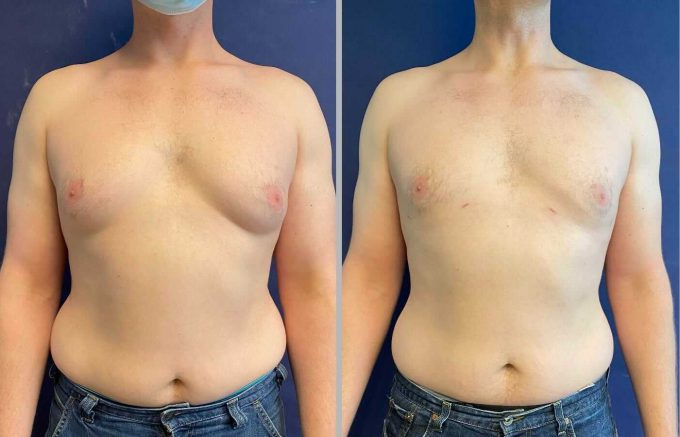 Image-from-iOS-3-680x437 Male Breast Reduction